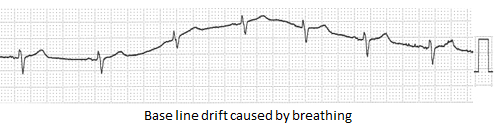 base line drift caused by breathing